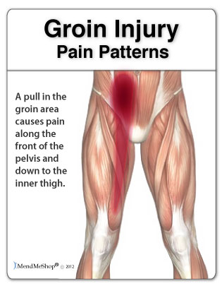 Groin pain patterns