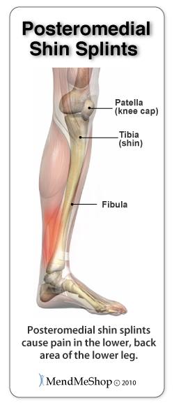 Posteromedial Shin Splint pain areas